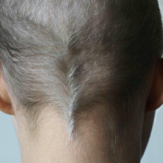 Bild på Majas bakhuvud